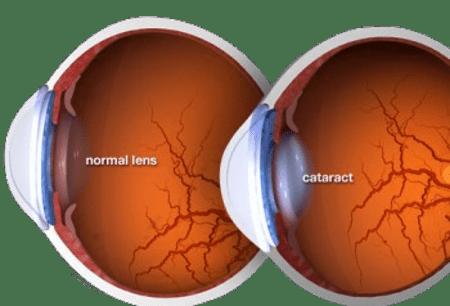 קטרקט בעיניים