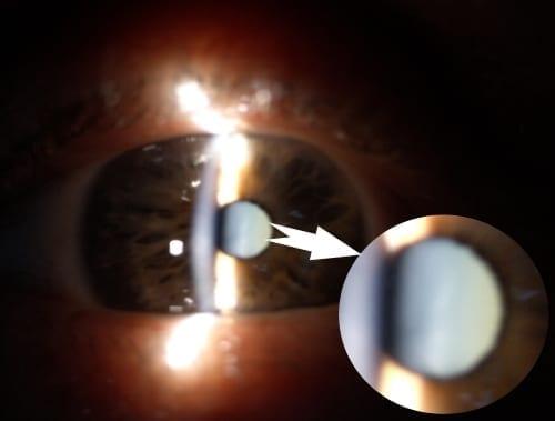 עין לפני ניתוח קטרקט